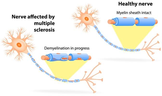 ms-disease